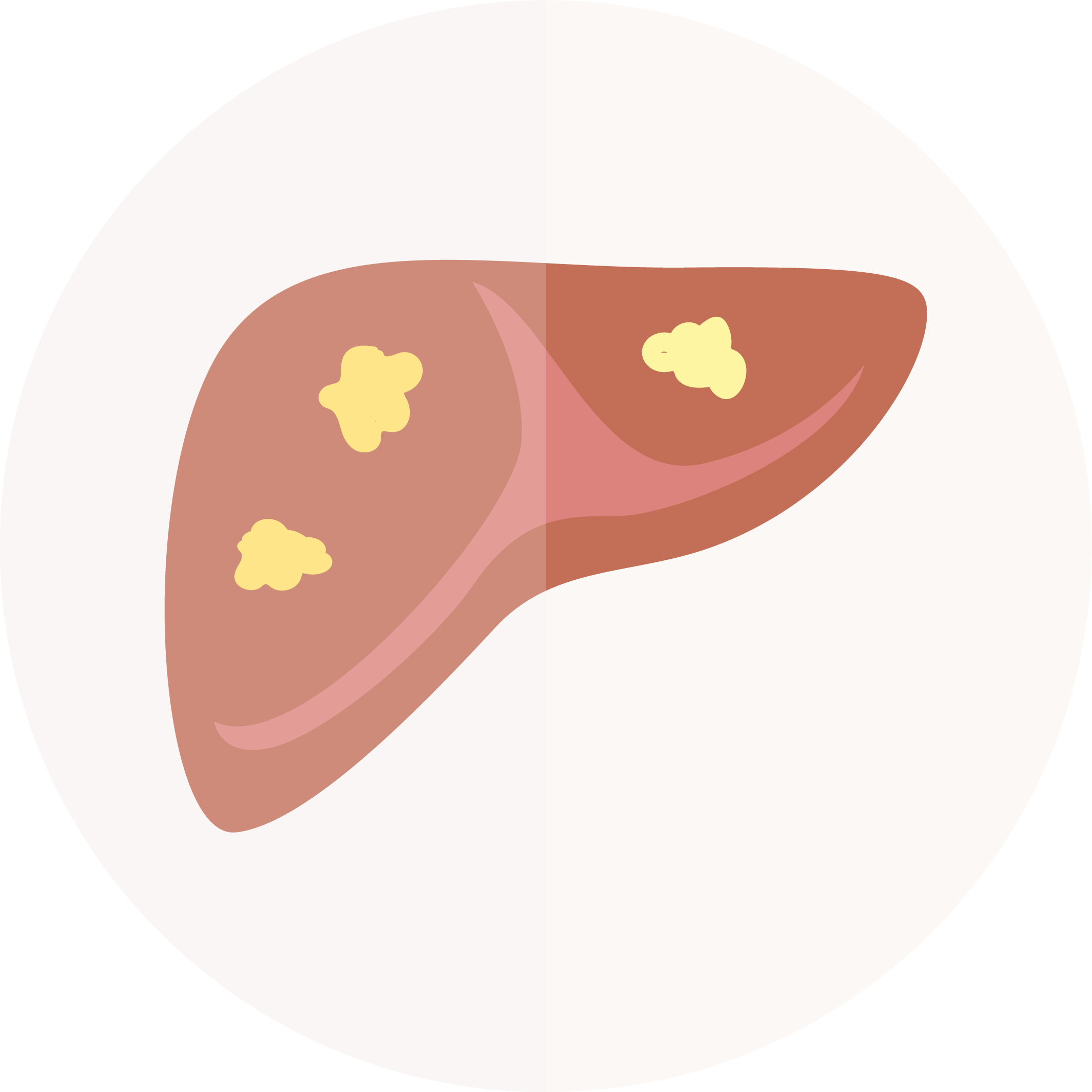 drawing: NAFLD liver